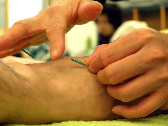 Is acupuncture painful japanese healing solutioingenieria